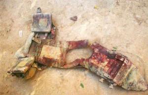 grenade wound